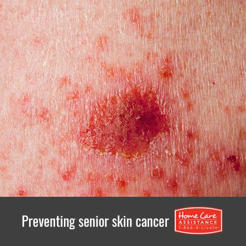 How to Protect Your Elderly Loved One from Skin Cancer in Mississauga, CAN